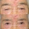 健康寿命を延ばしましょう。80代後半のかたの眼瞼下垂 挙筋前転術