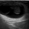 症例66:片側大陰唇が腫脹した6週女児(Ann Emerg Med. 2020 Dec;76(6):e123-e124.)