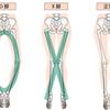 ストレッチでO脚を治す方法が簡単にわかるDVD
