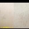 圧倒的症例数!ピコレーザー(エンライトン)でタトゥーを除去をしています。 3回治療後です。