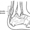 Achilles Tendinitis Causes And Treatments
