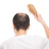 AGA(男性型脱毛症)という言葉をご存知ですか
