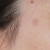 顔のシミ取り(1)検討開始