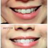 歯列矯正 6日目の雑記と、サプライズ