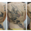 背中の大きなタトゥー。広範囲タトゥーでも1回の来院でできる限り全部照射します!
