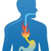 逆流性食道炎のセルフケア