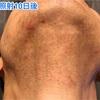 1回目の脱毛から二週間・毛の考察とまたトラブル発生