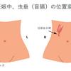 妊娠と虫垂炎(いわゆる盲腸)
