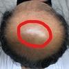 薄毛治療の開始から490日後の画像です