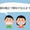 【歯科矯正 写真】開咬の治療・信頼できる先生に出会うために