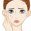 【肌荒れが止まらない】この時期の肌荒れは花粉皮膚炎かも