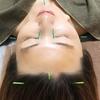 夏のトラブル肌対策にスキンケア鍼灸