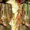 ハエ類の胸部背面の毛について