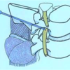 椎間板ヘルニア 神経根ブロック