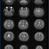 MRIの基礎