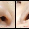 切らないで小鼻を小さくする!笑った時も広がりにくい小鼻になりませんか?