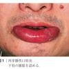 全身からくる口の病気