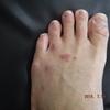 「足のケア」「免疫力」が弱くなる病気だと言われるが、この「免疫力」ってなんなのか全くわからない。