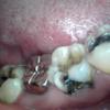 露髄歯の3Mix-AA法治療症例02