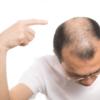 筋トレドクターくぼたが語る最も明るいED!!のおはなし ⑩髪の毛を取るか?下半身を取るか?
