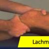 Lachman Test(ラックマンテスト)-やり方・陽性基準・前方引き出しテストとの違い・感度・特異度-