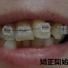 【歯列矯正】開始から90日までの画像・前アングル。