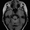 成人の進行性運動失調における診断と治療:種類/特徴/MRI所見|神経内科の論文学習