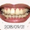 【矯正日記7】前歯の虫歯治療完了。