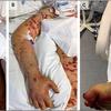 case 130:全身に急激に紫斑が出現しショックになった19歳男性 (N Engl J Med. 2021 Mar 11;384(10):953-963.)