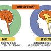 じじぃの「科学・芸術_394_脳死状態・パーソン論」
