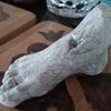 足の話3 初めての皮膚科。