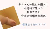赤ちゃんの指に水膨れ。虫刺されの水ぶくれで受診し対処【写真あり】