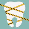 歯のクリーニングは、半年に1回もしなくていい?