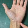 手首や小指の痛み【握ると痛い】
