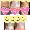 お腹の脂肪吸引【術後14日目】比較写真あり