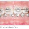 歯科矯正をすることにした〜①抜歯編〜