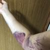 二の腕の脂肪吸引【術後の内出血】