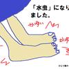 足のかゆみが止まらない。私の足「水虫」確定です。