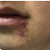 症例125:口唇へのヒアルロン酸注入後に口唇腫脹と皮疹が出現した37歳女性(Ann Emerg Med. 2021 Mar;77(3):315-337.)