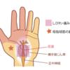 手を握りしめる動作で手根管症候群が増悪する理由