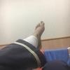 手術後20日目、腓骨神経麻痺のその後