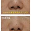 皮膚を切らない方法(切らない鼻翼縮小術)で小鼻を小さくしました。