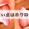 【体験談】舌にいきなりホクロ?急にできた黒い点について
