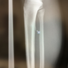 右足の痛みが良くならないので整形外科に行ったら疲労骨折していた