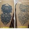 腕の黒一色タトゥーのインクを取ります