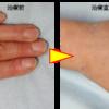 コンデンスリッチ脂肪注入によるハンドリフトをしました。手のシワ、筋張った手の甲をふっくらさせます。