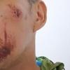 (アランヤプラテート)郊外でバイク事故、包帯巻いて、ボロボロになってバンコクに帰ってきました。