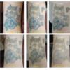 6色カラフルマルチカラー黒ピンク水色青紫黄、6回治療の経過写真