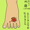 胃経(ST)44 内庭(ないてい)