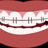 発音と歯並びの関係